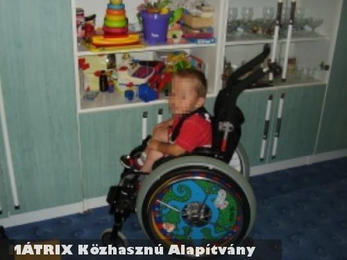 Patrikot, a nyílt gerinccel született kisfiút segítette a MÁTRIX Közhasznú Alapítvány